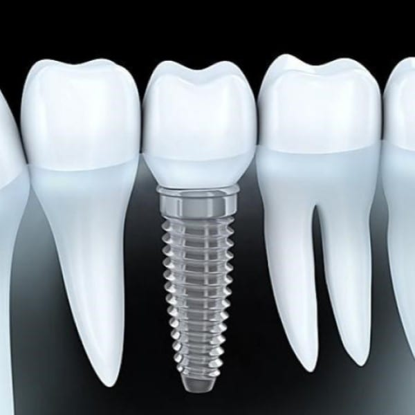 Dental Implant info, prices