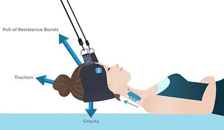 Illustration of how the Neck Hammock affects the neck.
