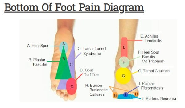 A foot pain map for the bottom of the foot.